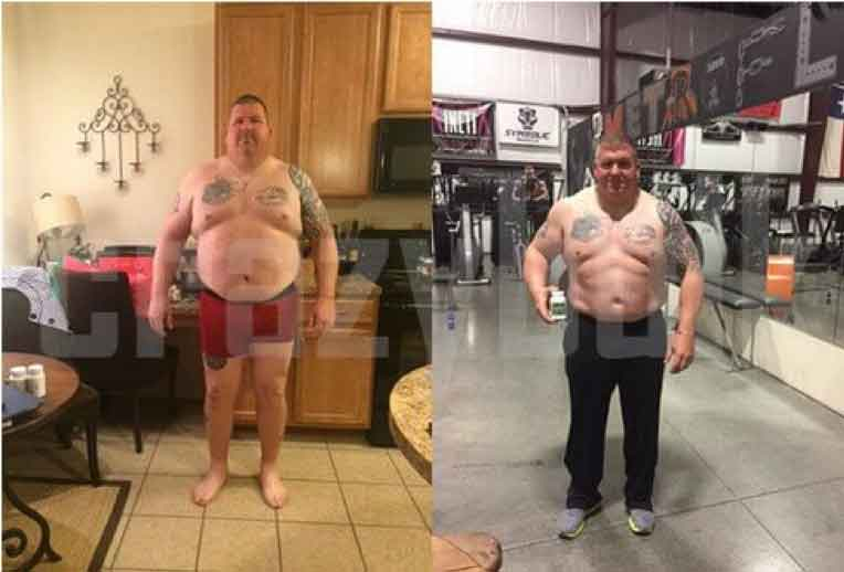 Richard before and after