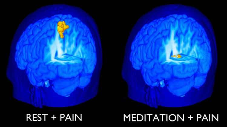 Pain and meditation